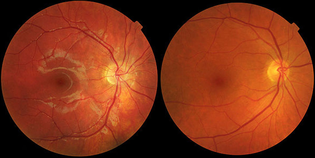 Guide about Age Related Macular Degeneration – AMD