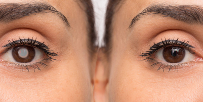 cataract-prevention-tips-to-prevent-cataracts-naturally