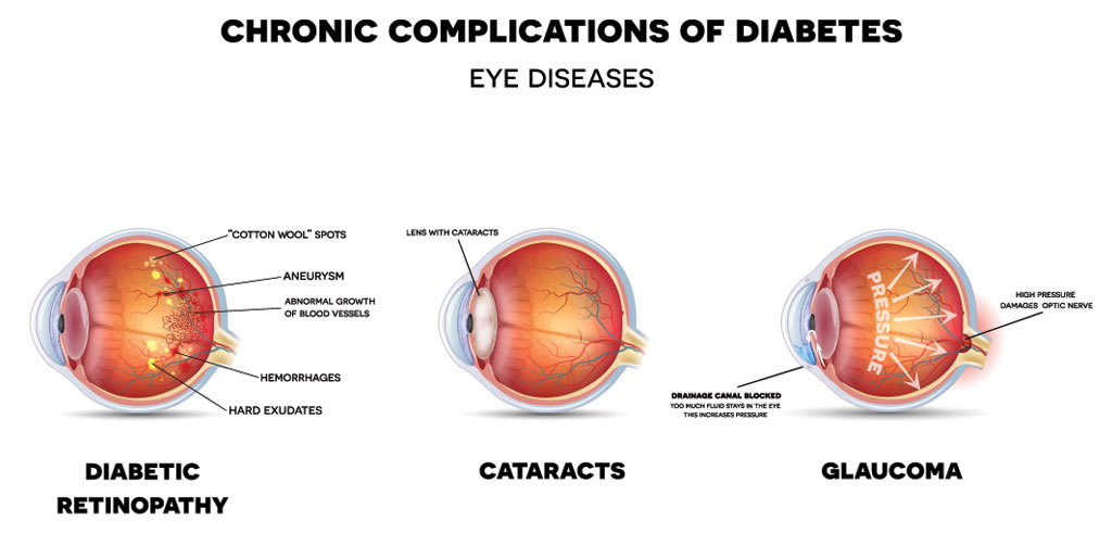 Diabetic Eye Problems – Symptoms, Treatment and Prevention