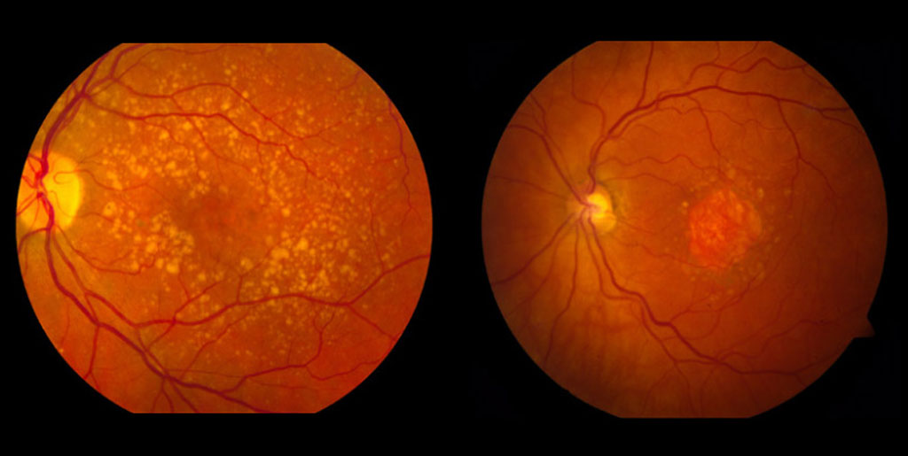 Age Related Macular Degeneration – Understanding the Difference between Dry AMD and Wet AMD