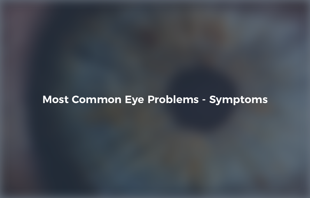 Most Common Eye Problems - Signs, Symptoms & Treatment | IrisVision