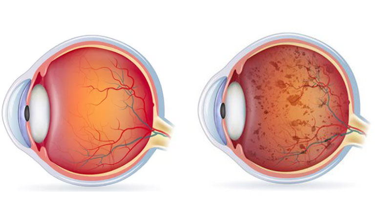 thing-to-consider-fighting-this-disease-retinitis-pigmentosa
