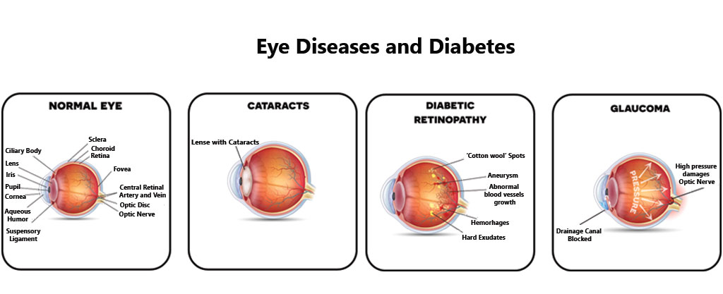 A Simple Guide to Glaucoma, Treatment and Related Conditions (A Simple Guide to Medical Conditions)