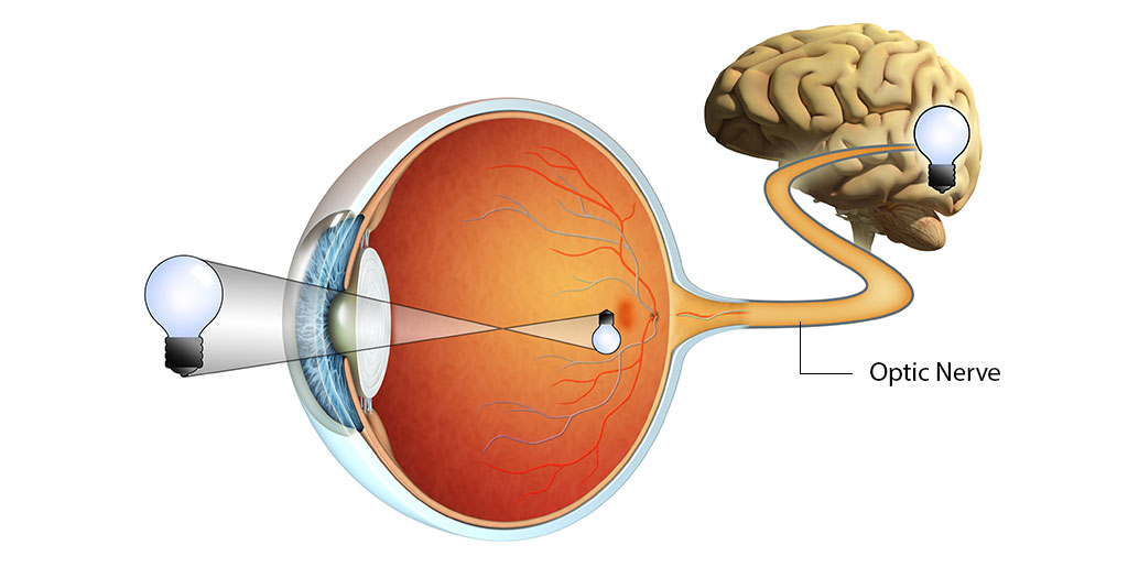Optic Nerve Damage: Accompanying Eye Diseases & Eye