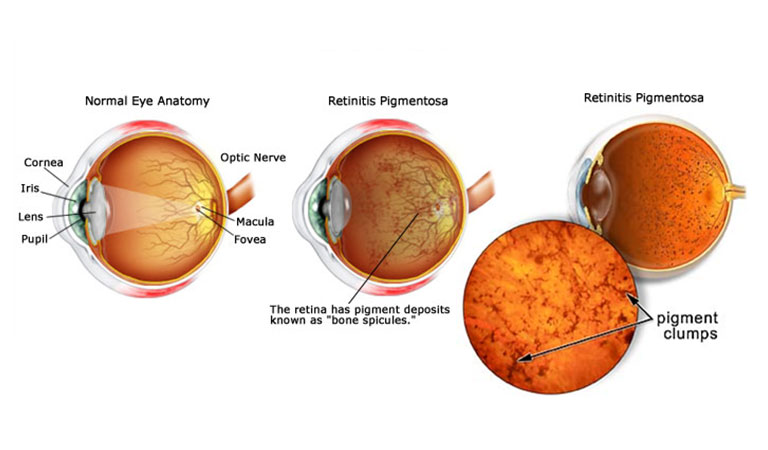 What is Retinitis Pigmentosa: Exploring the Causes and Symptoms