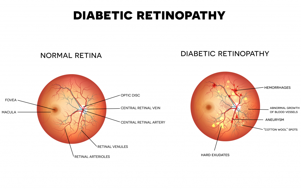 what-causes-diabetic-retinopathy