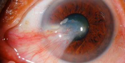 what-is-uveitis-causes-symptoms-and-treatment-options