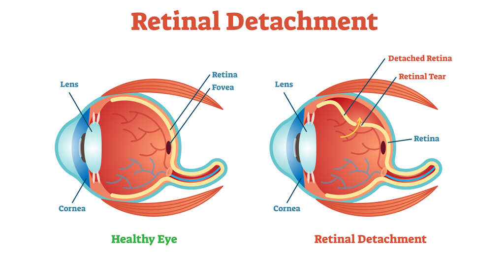 What is Retinal Detachment? Exploring Various Types, Causes and Treatments