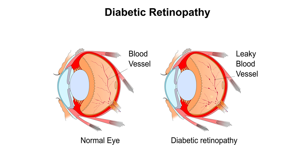 Are There Different Types of Diabetic Retinopathy?