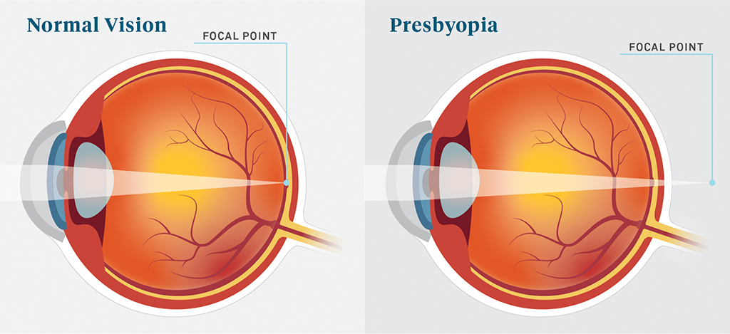 Presbyopia – A Common Eye Condition Related to Aging