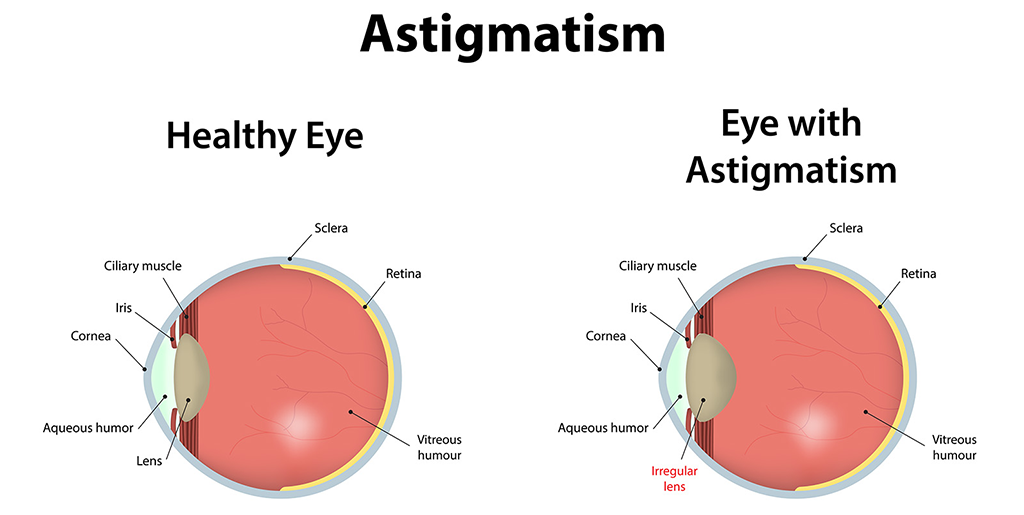 Astigmatism – Understanding the Basics of a Common Eye Condition